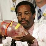 Dr. Ben Carson held a model of the heads of conjoined twins during a 2004 news conference.